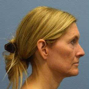 Facelift Before & After Photos | Case #16240 | Minimal